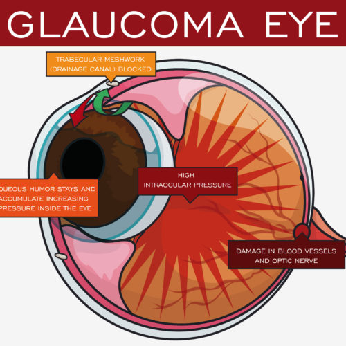 National Glaucoma Awareness Month